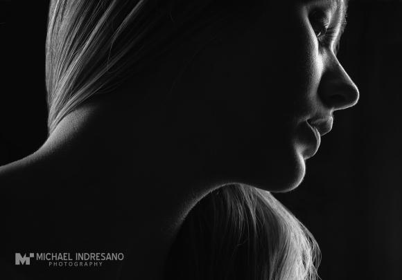 2014175_Hologc_ASRM_Stomach1_0153